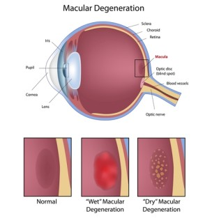 Blogging about Macular Degeneration
