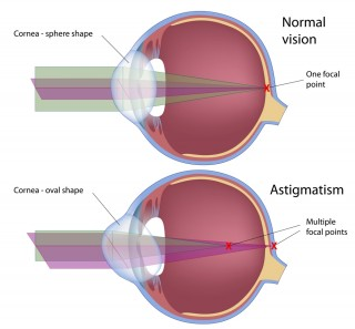 Astigmatism and Contact Lenses