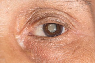What's the problem with cataracts?