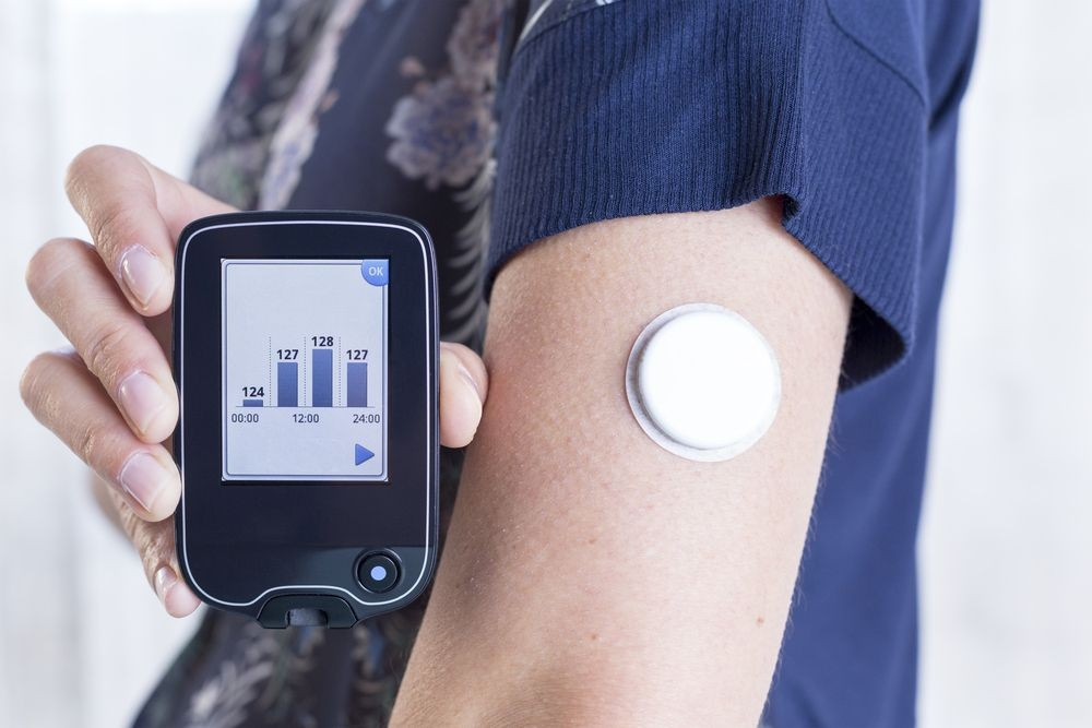 continuous-glucose-monitor