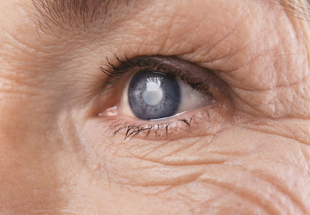 Do I Have Cataracts?