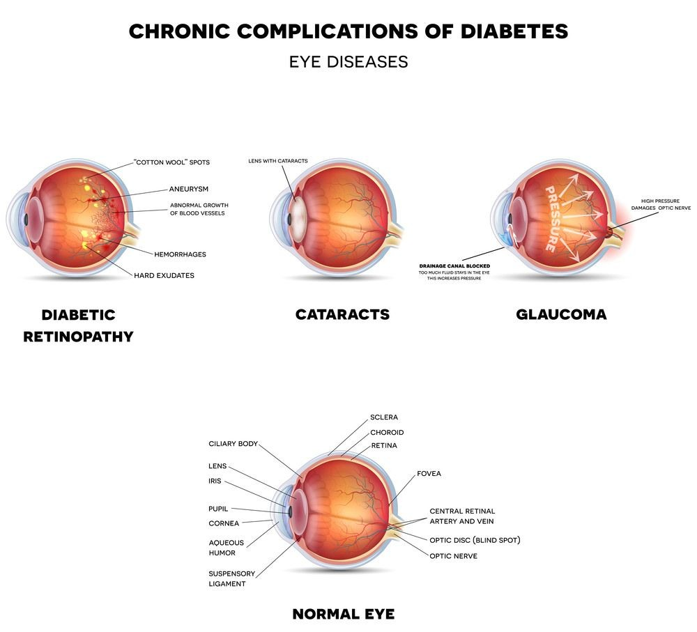 Diabetic Vision Conditions